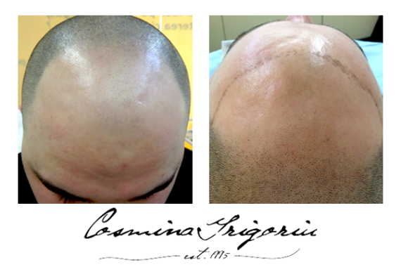 Alopecie-1